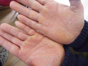Beschädigte Hände im Wachsbad pflegen
