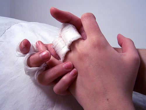 Schmerzcreme gegen plötzliche Handschmerzen