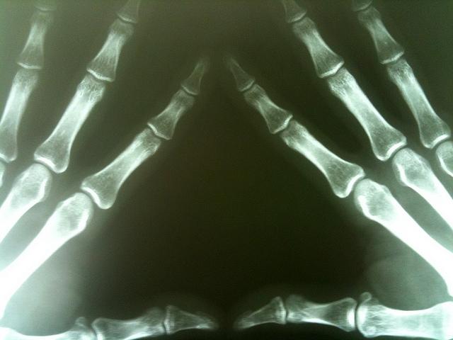 Röntgenaufnahme Arthrose Handgelenk