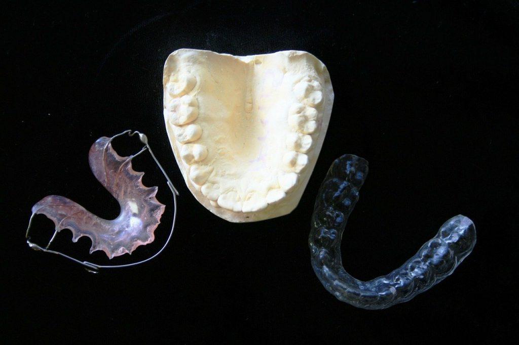 Zahnspangen bei Kieferschmerzen